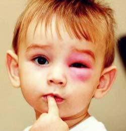 детский-конъюнктивит